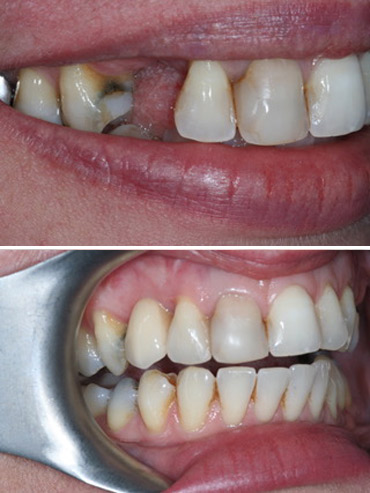 Replacement of right canine tooth with implant retained crown