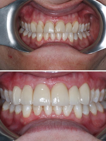 Replacement of old veneers