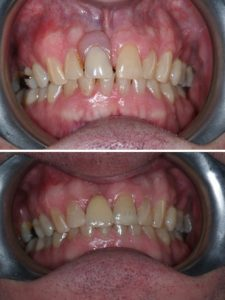 Replacement of a denture with a fixed adhesive bridge